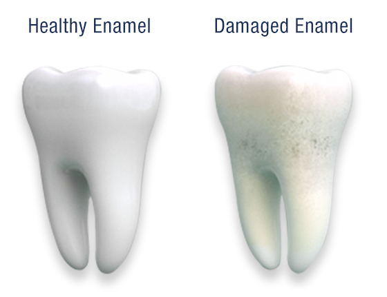 Comparison of Healthy Enamel and Damaged Enamel