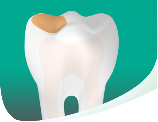 Tooth With Cavity Mobile