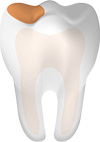 Tooth With Cavity Main