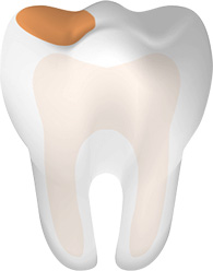 Tooth With Cavity Main Mobile